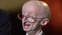 (Must Watch) - If you think you have problems, watch Sam Berns to put your life in perspective
